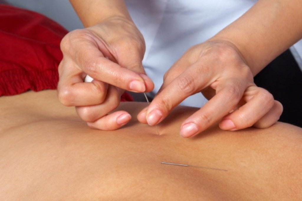 A close up photograph of a person receiving acupuncture treatment.
